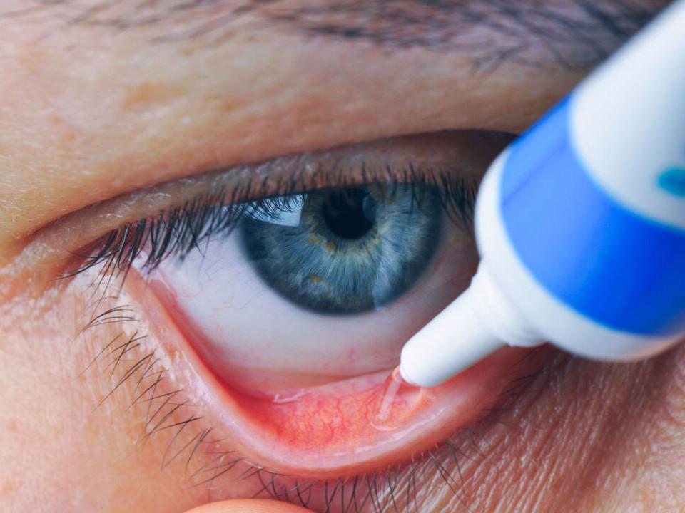 白內障竟然會併發青光眼?兩疾齊發誰最應該優先治療?