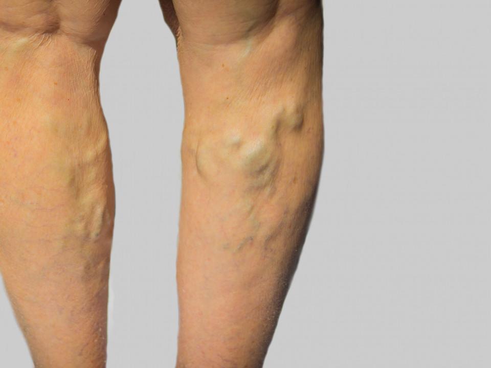 久坐導致腿部靜脈曲張?嚴重型、外觀型三大治療選項看這邊