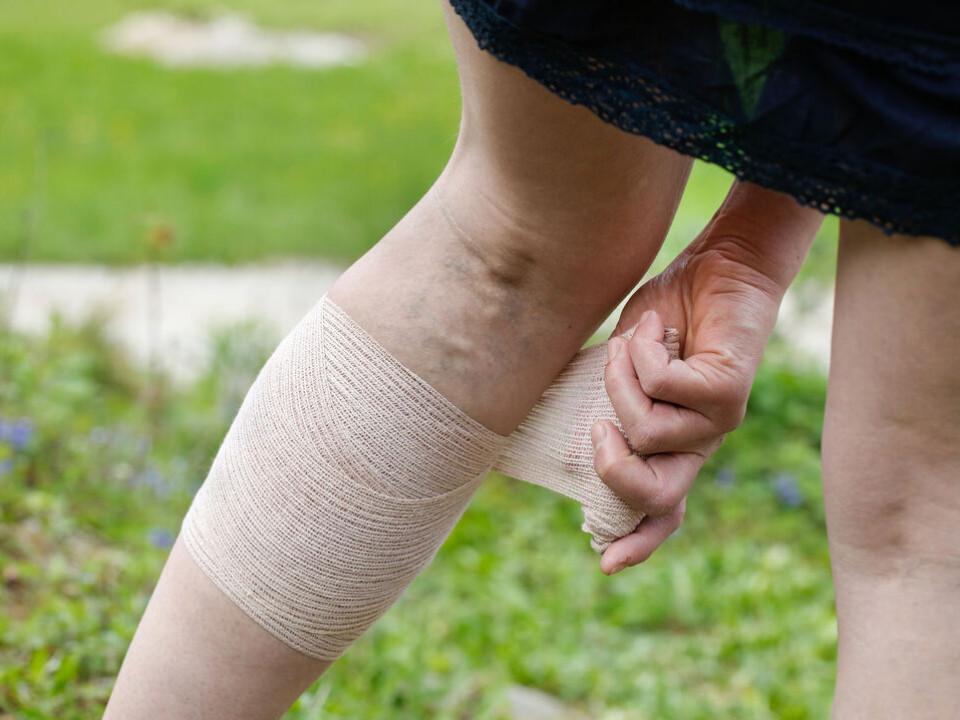 腿部腫脹、浮腳筋也會有併發症?靜脈曲張穿彈性襪有用嗎?
