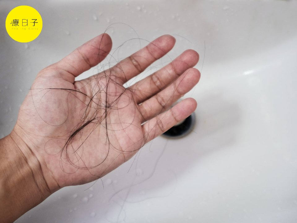 吃這些食物會掉髮?實測預防落髮6大食物 ,讓頭髮長回來