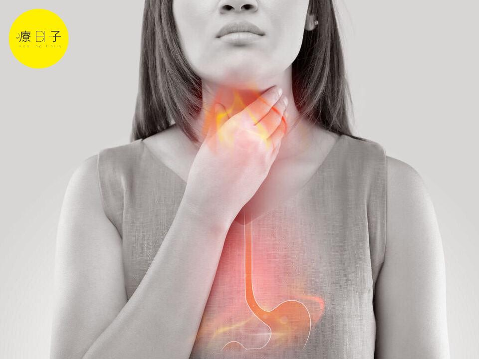 胃酸逆流 胃食道逆流