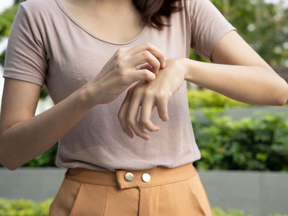 身體濕氣重是皮膚癢的原因之一,讓中醫師教你如何體內除濕!