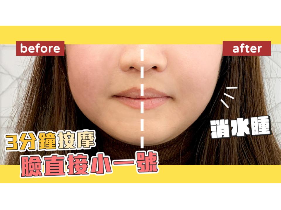 臉水腫怎麼辦?消水腫穴道
