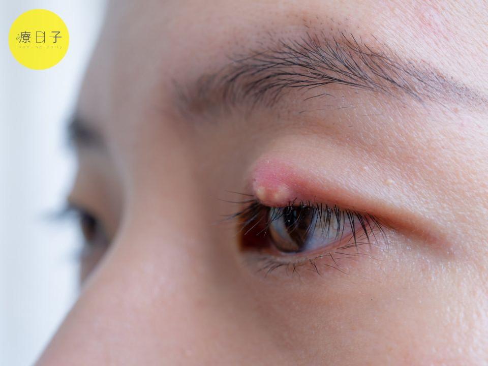 針眼會傳染嗎
