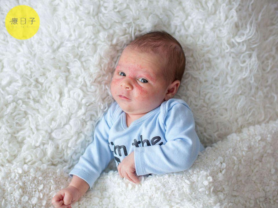 嬰兒脂漏性皮膚炎
