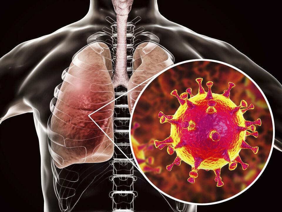 新冠肺炎後遺症