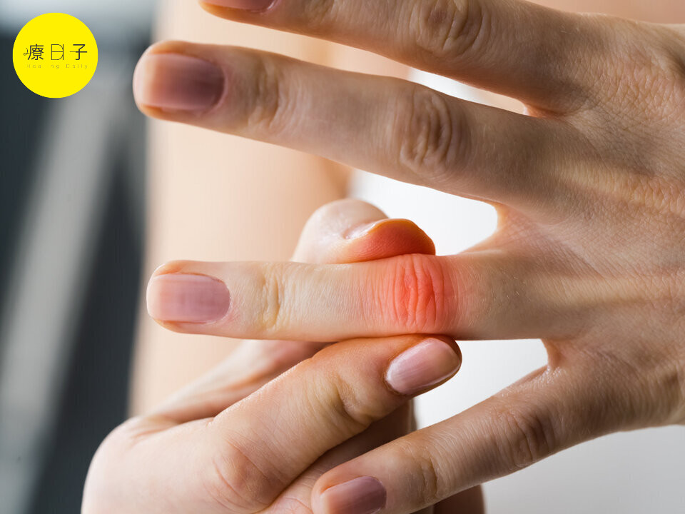 類風濕性關節炎治療